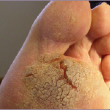 how to treat recalcitrant plantar warts How To Treat Recalcitrant Plantar Warts