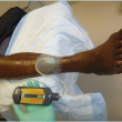 emerging insights on negative pressure wound therapy Emerging Insights On Negative Pressure Wound Therapy