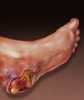 managing the recalcitrant calcaneal wound Managing The Recalcitrant Calcaneal Wound